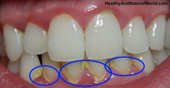 Two daily teaspoons of this natural ingredient will save your teeth and may even remove plaque and harmful bacteria.