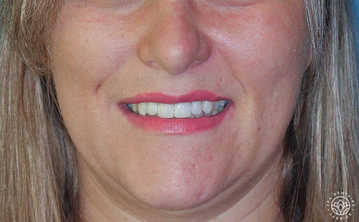 Design de sourire - Après - 2  Elle a retrouvé le bonheur de sourire grâce à cinq couronnes de porcelaine, une facette de porcelaine et un blanchiment des dents maison.
