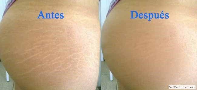Dile adiós a esas fastidiosas líneas que se forman en la piel, te marcan y te cohíben de lucir tu cuerpo, por lo general aparecen cuando se ...