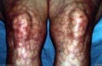 livedo reticularis  #medicine #lupus #skin