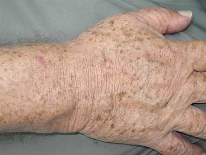 Assuntos e Achados da Scheila: Tratamento Natural para Combater as Manchas Senis