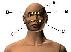 Acupressure Points for Relieving Headaches and Migraines