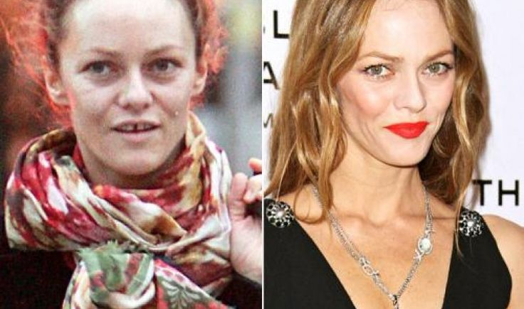 12 shocking pictures of celebrities without makeup