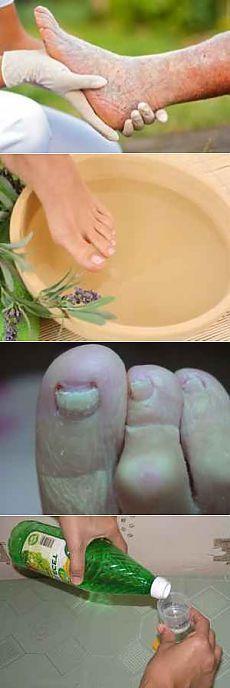 Грибок на ногтях ног, лечение для пожилых.