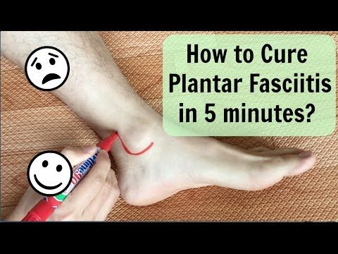 How To Cure Plantar Fasciitis(Heel Pain) in 5 minutes?如何在五分鐘內解決足底筋膜炎?/ Chinese Therapy - YouTube