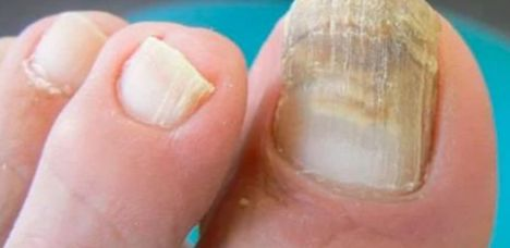 """La piel de los seres humanos es muy delicada en cierta forma, hacemos énfasis a lo de """"cierta forma"""" porque la verdad es que tiene un trabajo muy complicado, primero debe protegernos de las amenazas del exterior como lo son las bacterias, los rayos del sol y otros, pero también debe lidiar con nosotros. A"""