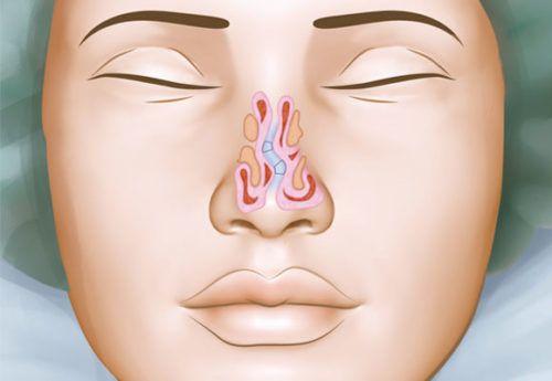 o que é desvio de septo nasal