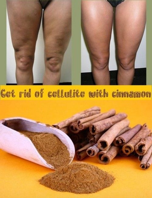 Cellulite Home Remedies That Work Like A Charm | The WHOot