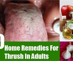 10 Home Remedies For Thrush In Adults - Natural Treatments & Cure For Thrush In Adults | Search Home Remedy - Part 1345550349000