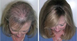 L'huile de ricin est l'un de mes traitements préférés de croissance des cheveux et je l'utilise également pour mes cils et mes sourcils! Je l'ai même utilisé pour repousser rapidement les poiles de ma frange qui avaient été brûlés complètement!