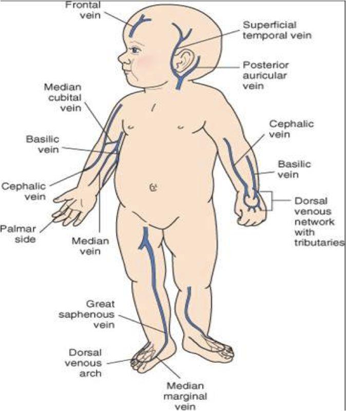 "IV sites for pediatrics - including ""The Unicorn""!"