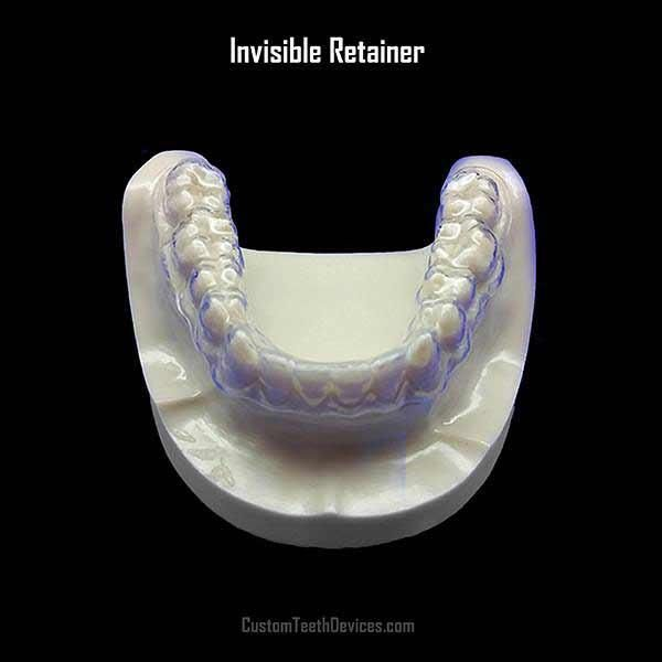 Invisible Clear Retainers Clear Retainers New Year Offers