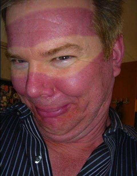 funny sunburns, worst sunburns, sunglasses line sunburn