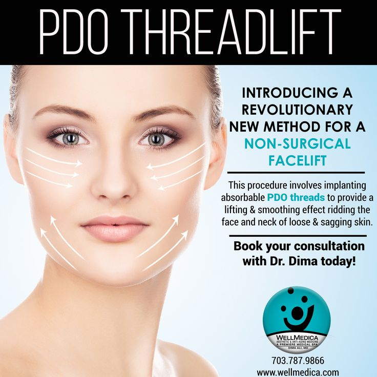 "Thread Lift, also known as Insta Lift,  is a revolutionary new method for a non-surgical face lift. Inserting microfilaments called PDO threads in areas along the face ""in the direction of youthful vectors"" will help stimulate collagen to firm the skin and visibly lift the eyebrows, cheeks, jawline, and double-chin areas. And the whole thing is done with only local anesthetic, so the downtime is minimal."