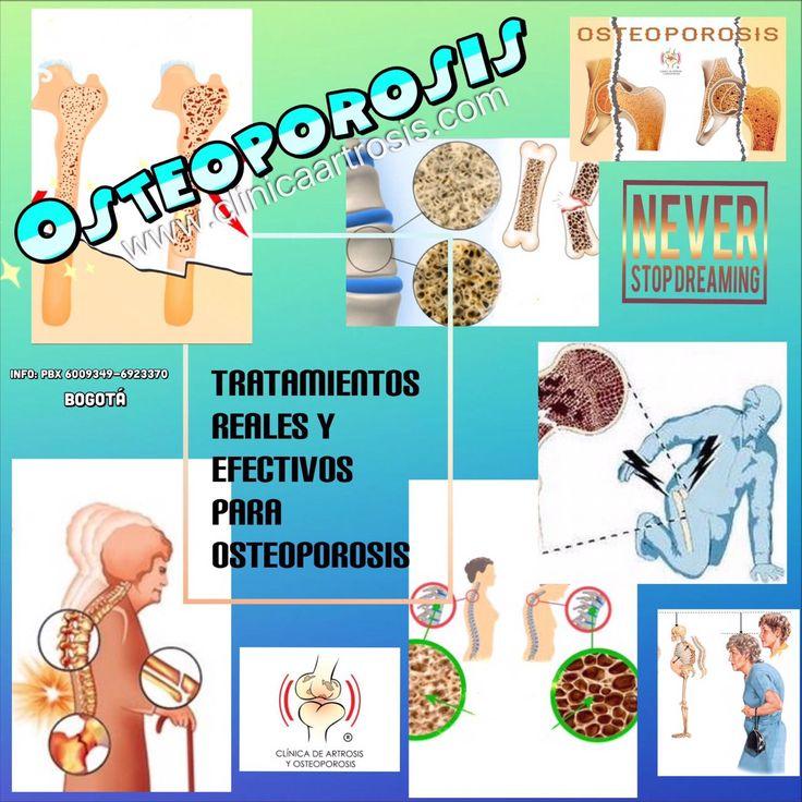 Controle en forma efectiva la osteoporosis en Colombia. La osteopenia, osteoporosis, fragilidad ósea severa, riesgo de fractura alto. Múltiples opciones eficaces con calidad científica. Visítenos en la Clínica de Artrosis y Osteoporosis www.clinicaartrosis.com PBX: +571-6836020, Teléfono Movil: +57-300-2597226 en Bogotá - Colombia.