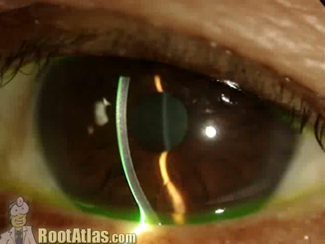 """Cell and Flare. What inflammatory cell looks like in the eye.  This video demonstrates what cell and flare look like under the slit-lamp microscope. """"Cell"""" is the individual inflammatory cells while """"flare"""" is the foggy appearance given by protein that has leaked from inflamed blood vessels. This finding is commonly seen with uveitis … and actually seeing it can be challenging for the beginning ophthalmology residents."""