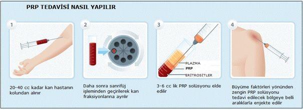PRP Tedavisi Nasıl Yapılır,Nasıl Uygulanır?