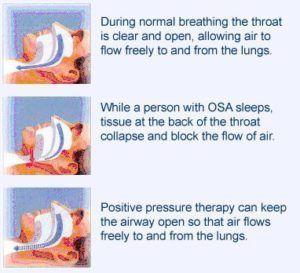 MS and fatigue linked with sleep apnea