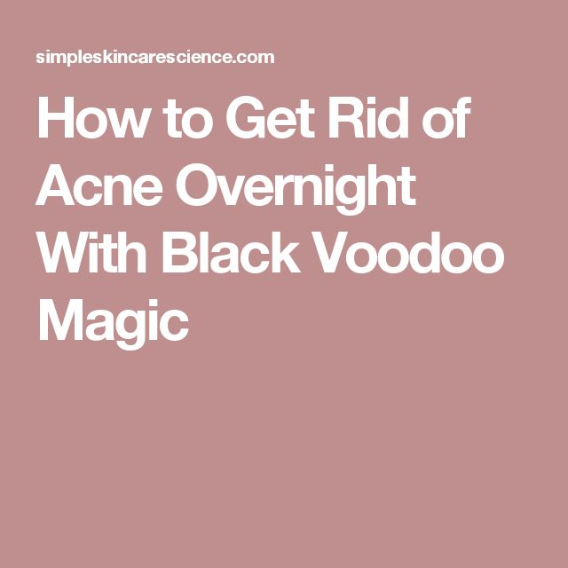 How to Get Rid of Acne Overnight With Black Voodoo Magic