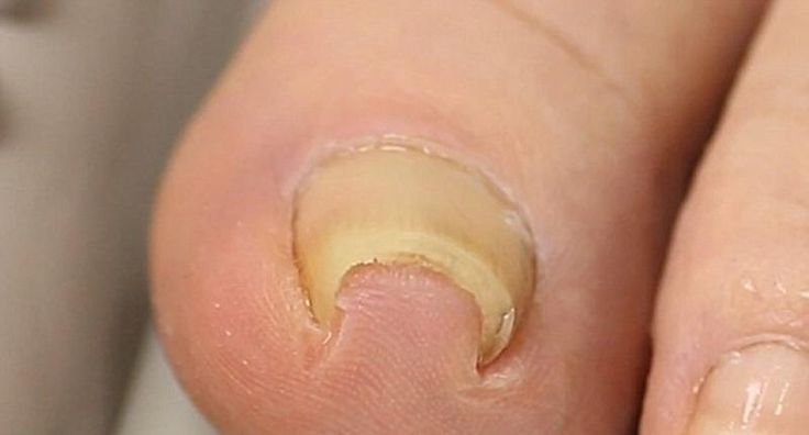 Simplest Way To Remove An Ingrown Toenail Without Surgery