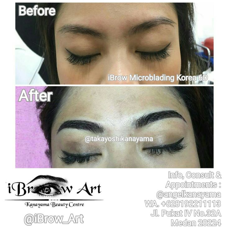 iBrow Art - Kanyama Beauty Centre Spesialis : Sulam Alis Korea, Bibir, Eyeliner, Eyid, Hairline, MTS BB Glow, Eyelash Extension, Akupunktur Kecantikan, Kursus