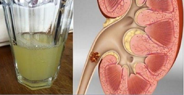 As pedras renais se formam quando a urina contém grande quantidade de certas substâncias (cálcio, ácido úrico) que formam cristais.O cálculo pode permanecer nos rins por semanas, meses ou mesmo anos, sem causar sintomas comuns.
