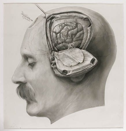 drawing of the brain during an operation, Harvey Cushing (1869-1939), an early neuro-surgeon