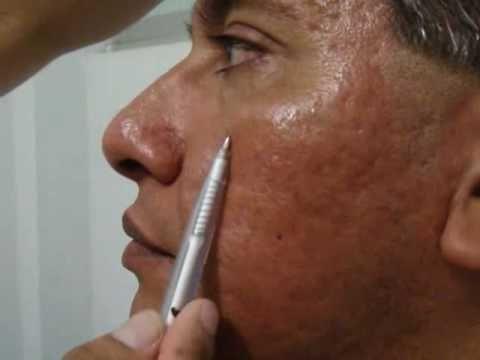 Eliminar cicatrices de acne, marcas de acne ¿Es Posible? - Tratamiento de acne en Lima - http://solucionparaelacne.org/blog/eliminar-cicatrices-de-acne-marcas-de-acne-es-posible-tratamiento-de-acne-en-lima/