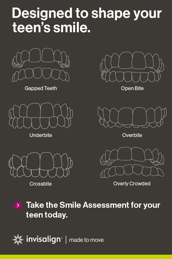 Think your teen's teeth are a little too complicated for Invisalign® treatment? Let us set you straight. From the simplest cases to the most complex ones, Invisalign clear aligners have helped teens find their best smile. Take the Invisalign Smile Assessment today.