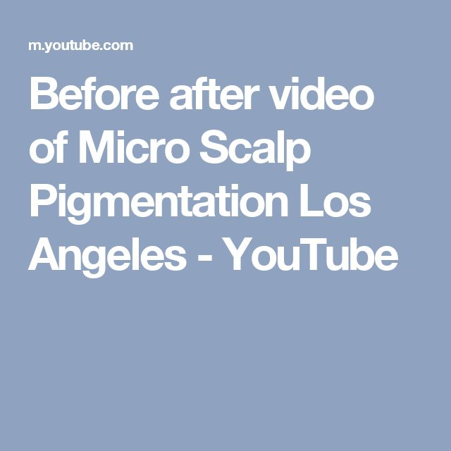Before after video of Micro Scalp Pigmentation Los Angeles - YouTube