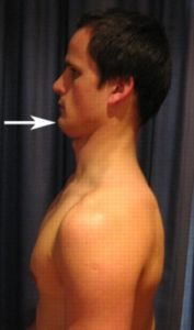 Exercises to help with cervical disc bulge caused by poor posture.