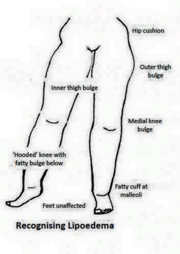 49 best Treatment for Lipedema and Lymphedema images on