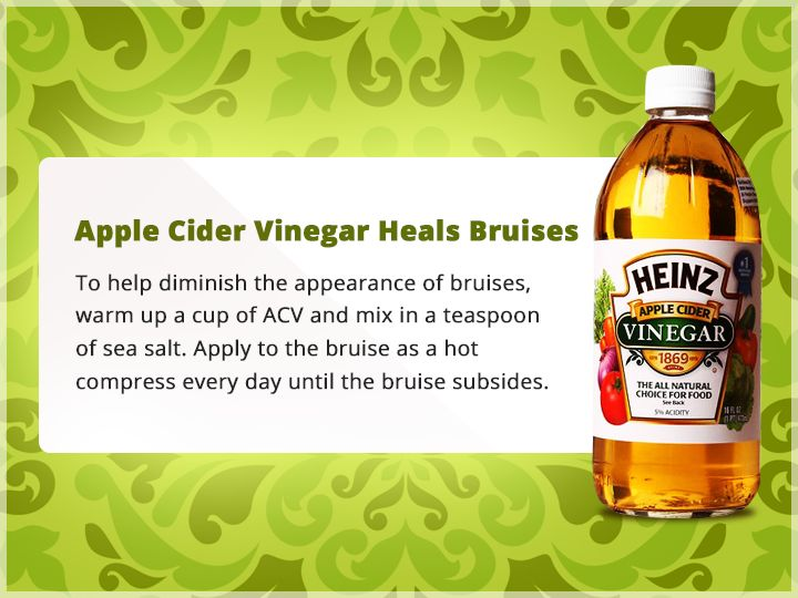This will help quicken the #healing process & this way you can get rid of #bruises a lot faster. #AppleCiderVinegar