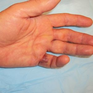 Stages And Symptoms Of Dupuytren Contracture