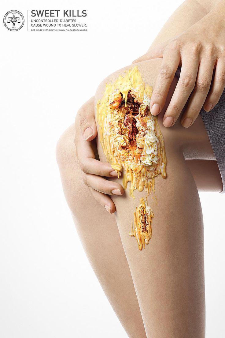 Раны от конфет предупредили о последствиях диабета. | MMR