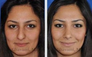 Rhinoplasty Beverly Hills – Nose Surgery Los Angeles