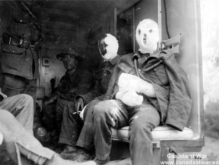 WWI: The extensive bandages on these wounded Canadian soldiers may indicate that they have suffered the effects of flame or mustard gas. Mustard gas burned the lungs, but also caused serious external blisters and disfigurement. - Found via Canada at War