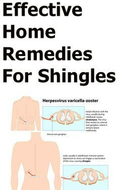 Shingles Natural Treatment Diet