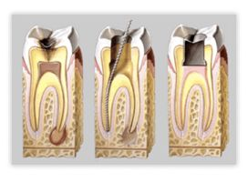 bdental_endodoncia