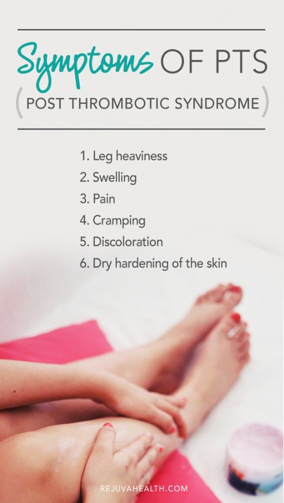 142 best Varicose Veins-Blood Clots-Cold Feet images on Pinterest ...