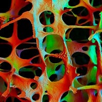 How could osteoporotic bone BE so beautiful?: Body, Common Habits, Bones Health, Alcohol, Photography Image, Osteoporot Bones, Architecture, Drinks, Image Galleries