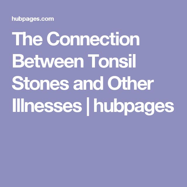 The Connection Between Tonsil Stones and Other Illnesses | hubpages