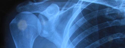 Rehabilitación del hombro doloroso en la hemiplejia http://davidaso.fisioterapiasinred.com/2012/07/rehabilitacion-del-hombro-doloroso-en-la-hemiplejia.html