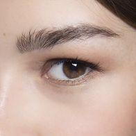 5 Things That Cause Under Eye Circles