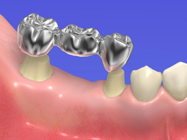 Crowns and Bridges… And Not the Fairytale Kind When it comes to dentistry, dental crowns and tooth bridges are super important. Both are prosthetic devices that are cemented to your teeth or implants. But what exactly are they and how can they help your teeth?
