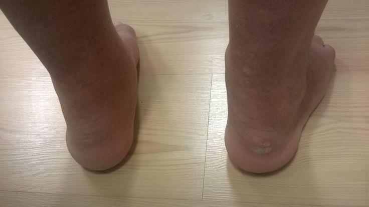 Kuvassa askellusvirheen aiheuttamat laaja-alaiset ja syvät hankaumat kantapäissä. Henkilön perussairaus aiheuttaa tuntopuutoksia, joten hankaumat tulivat huomatuksi jalkojen terveydenhoitoon syventyneen lähihoitajan vastaanotolla.