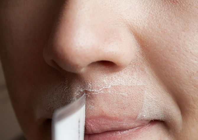 How to prevent facial hair on women-3260