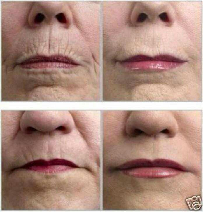 Instantly Ageless works on wrinkles anywhere, not just under eyes! www.amiewolff.jeunesseglobal.com