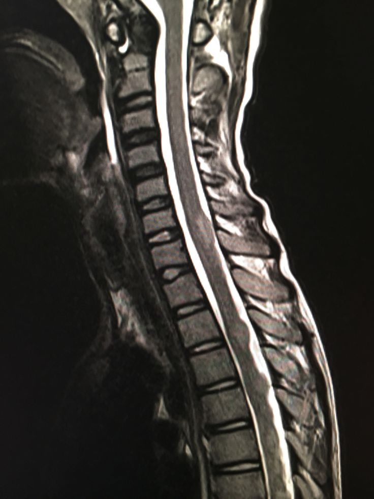 Pin on Radiology interesting cases and Spotters