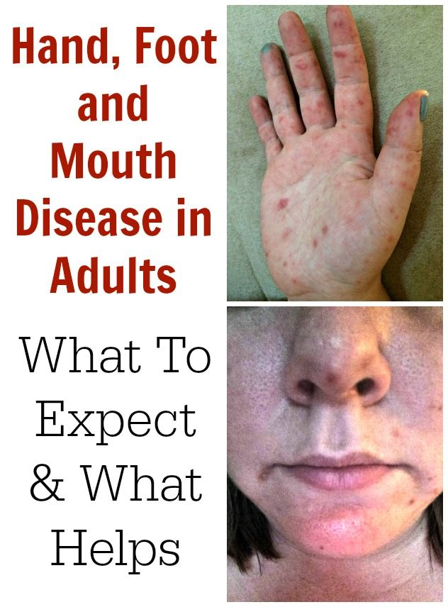 Hand, Foot and Mouth Disease in Adults – What To Expect